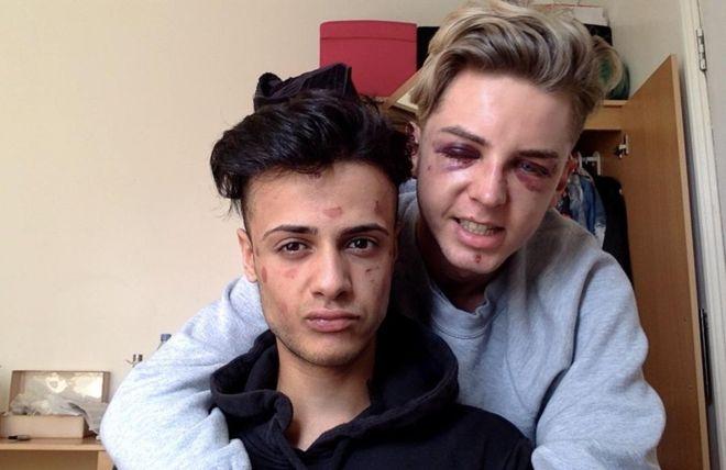 Mărturia emoţionantă a unui tanar homosexual