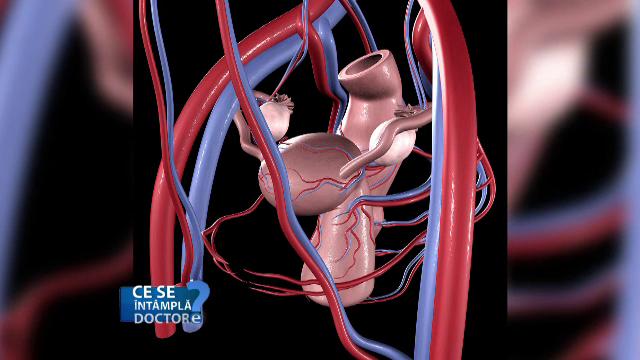 Cum se poate trata fibromul uterin, afecțiunea care predispune la infertilitate