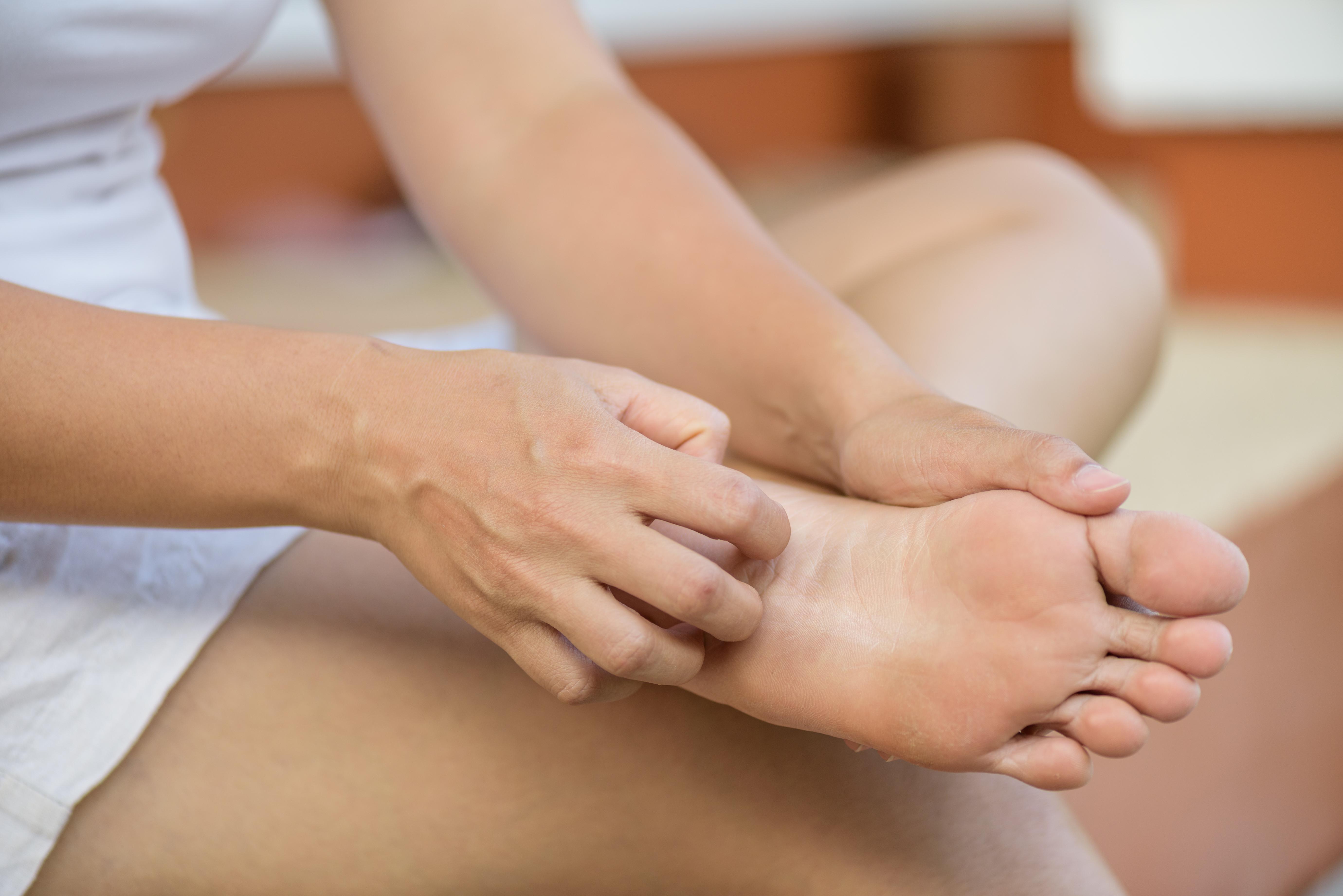 mâncărime între tratamentul degetelor de la picioare