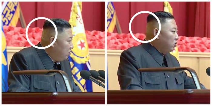 Bandajul de pe ceafa lui Kim Jong-un, un nou mister care stârnește semne de întrebare cu privire la starea sa de sănătate