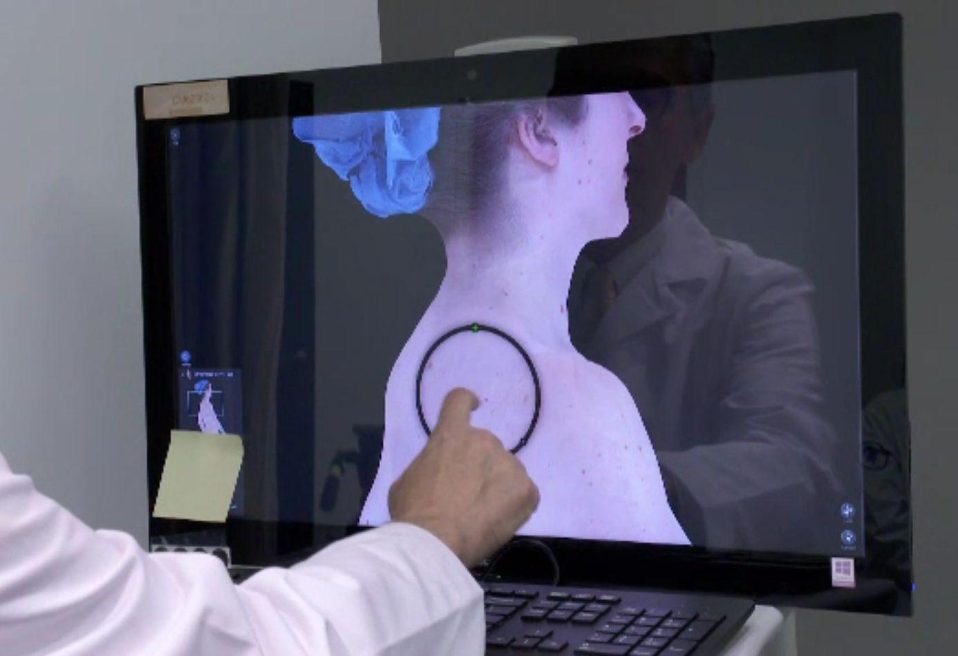 Cancerul de piele, depistat în câteva minute cu noile tehnologii. Înainte dura și patru ore