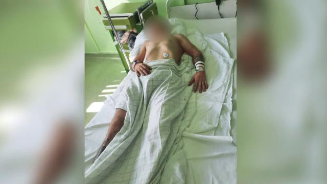 Caz revoltător la Arad. Tânăr bătut, dezbrăcat și lăsat inconștient pe asfalt. Agresorii sunt liberi