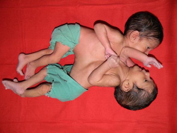 Medicii se lupta sa salveze doua fetite siameze abandonate intr-un orfelinat din China