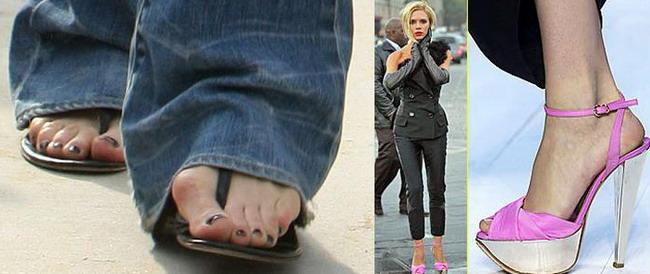 Victoria Beckham, deformata din cauza pantofilor cu toc!