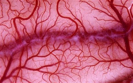 Cercetatorii sunt mai aproape de vindecarea bolii Alzheimer. Ce au descoperit in urma unor teste de sange