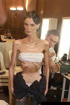 Modele macinate de anorexie. Sacrificiul pentru o viata pe catwalk FOTO
