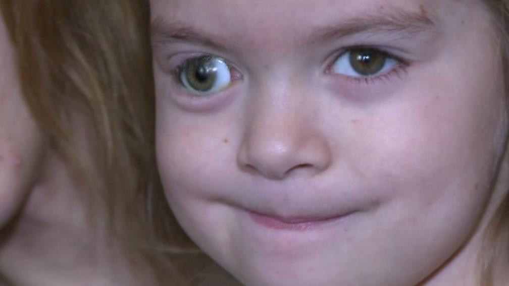 Proteza speciala pentru o fetita de cinci ani. O echipa de medici se pregateste de o operatie complicata