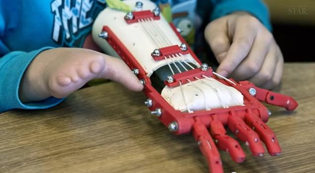 Baiatul de 9 ani, nascut fara degete, a primit un cadou neasteptat. Cum a fost realizata proteza revolutionara
