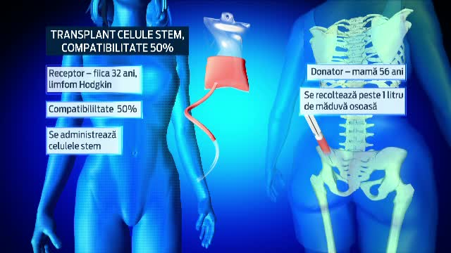 Medicii romani au realizat pentru prima data un transplant de celule stem, de la mama la fiica, cu compatibilitate de 50%