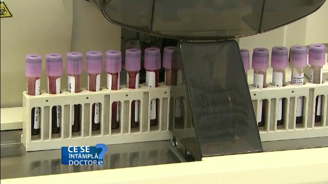 Informatiile esentiale pe care le poti afla printr-un test de urina. Valorile ridicate care tradeaza aparitia bolilor renale