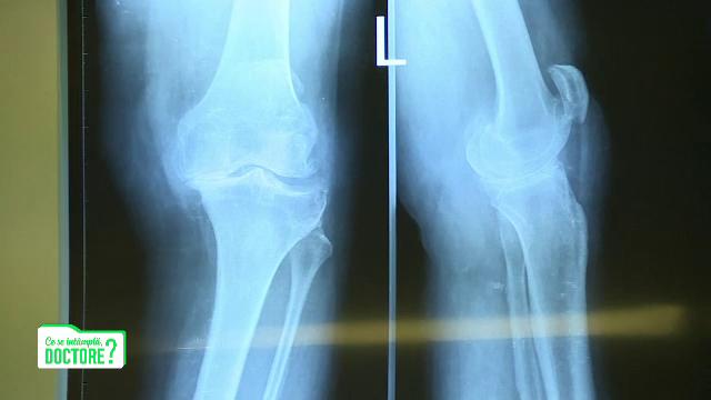 CSID. Kilogramele în plus se simt cel mai mult în articulații. Cum apare artroza