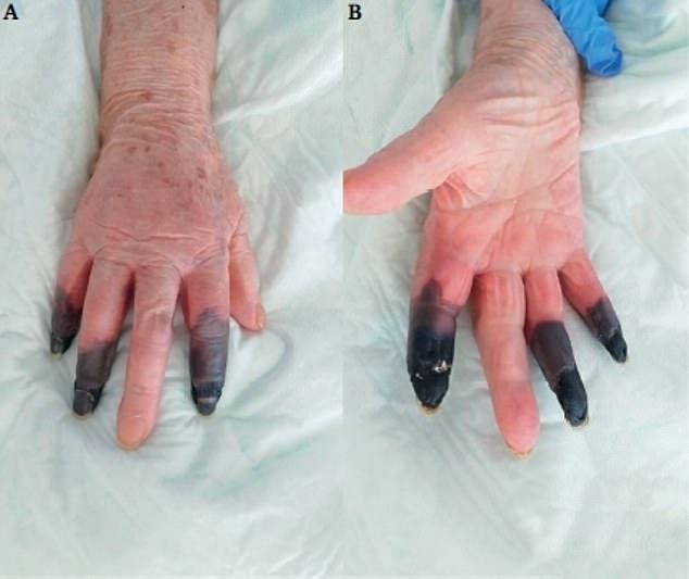 Caz în Italia. Medicii au amputat 3 degete unei paciente cu Covid-19, după ce i s-au înnegrit