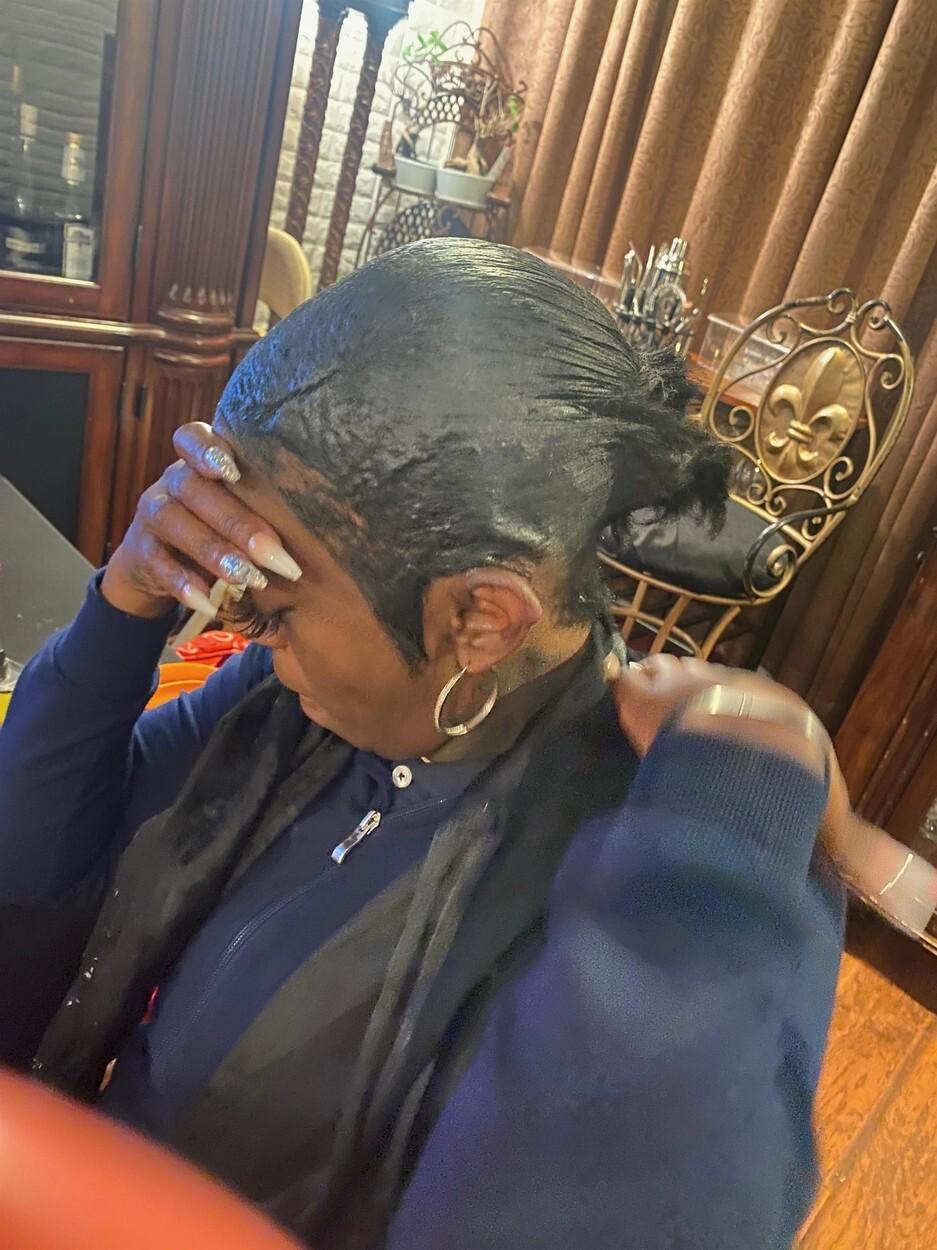 Decizia luată de femeia care și-a dat intenționat cu lipici în cap, după ce un medic a tratat-o gratuit