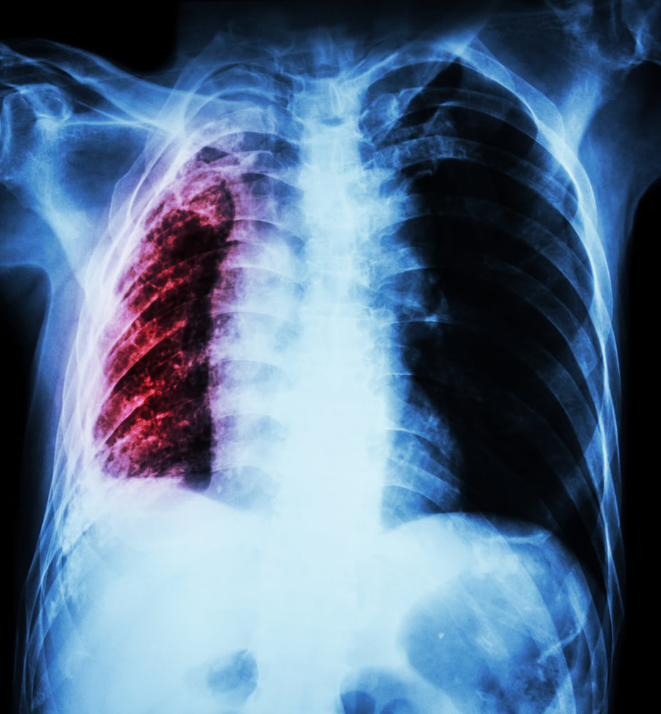 Ce trebuie sa faca pacientii, dupa COVID, sa nu ramana cu plamanii afectati. Sfatul medicilor