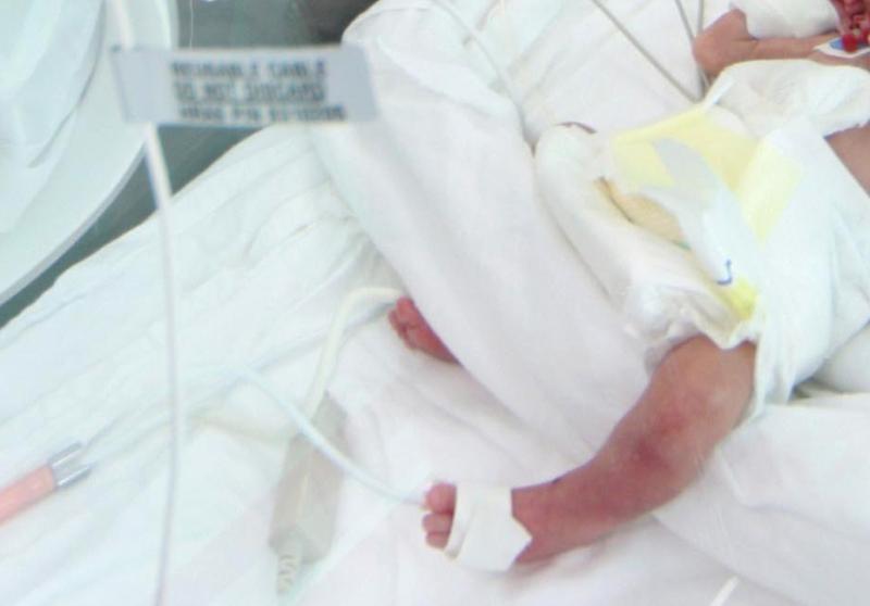 Incubator de 10.000 de euro pentru copiii nascuti prematur in Cluj