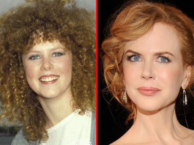 Nicole Kidman a renuntat la Botox: Pot sa imi misc iar fruntea!