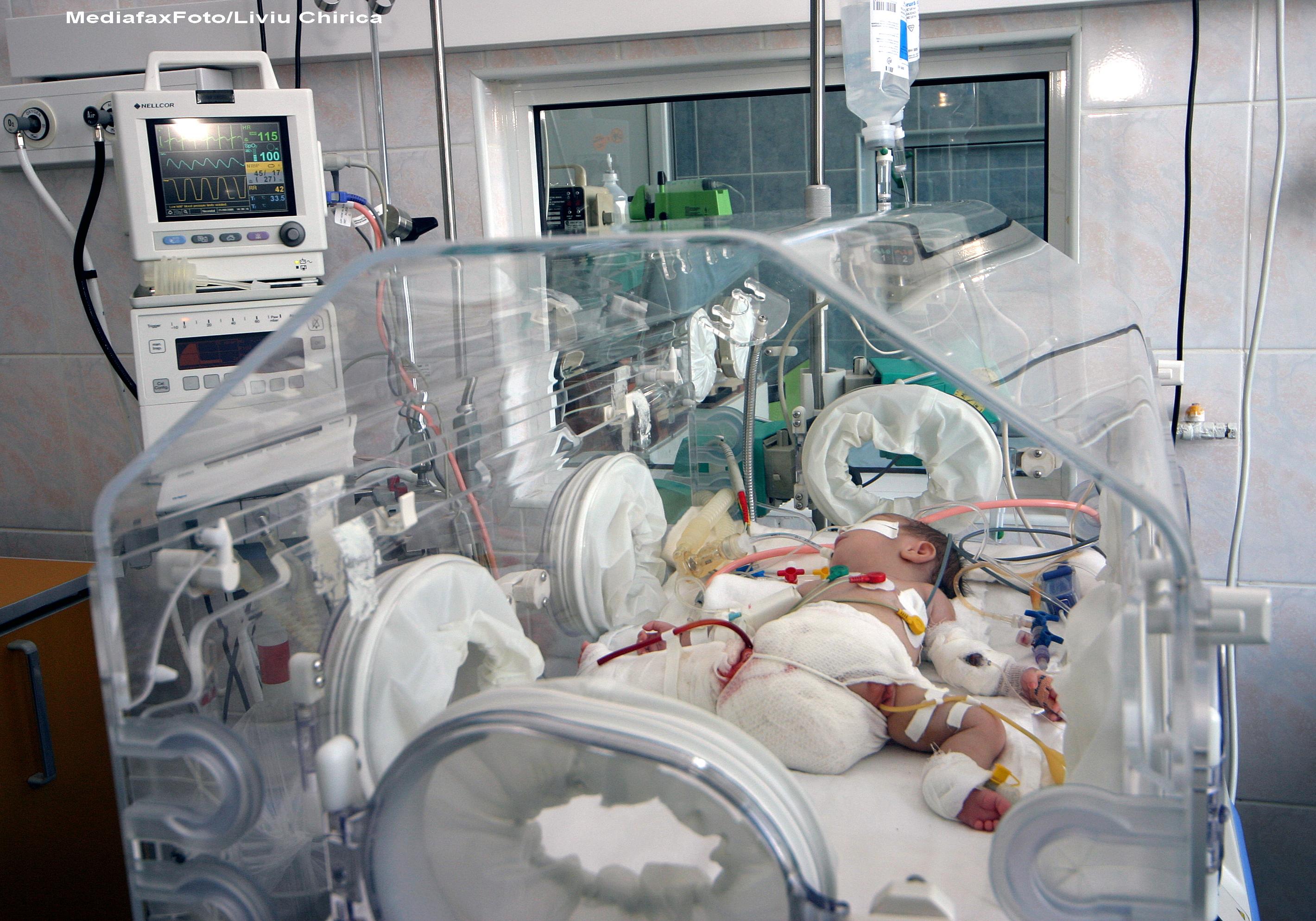 Vesti bune de la medici pentru siamezele din Pitesti. Fetitele nu au malformatii craniene