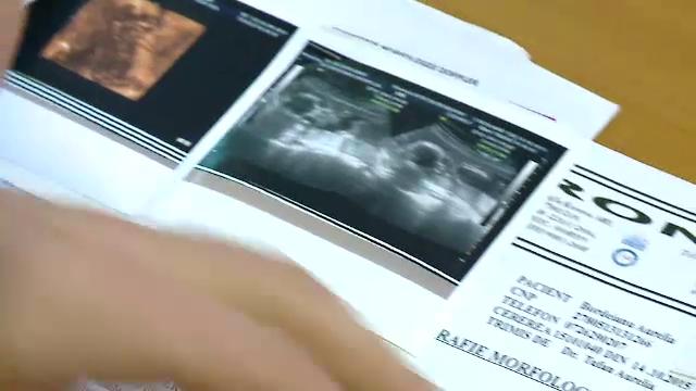 Drama femeii obligate sa duca la capat sarcina, desi va naste un bebelus cu multiple malformatii: