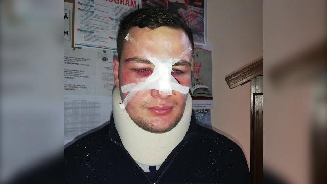Polițist desfigurat de un om de afaceri după ce l-a amendat. Agresorul a fost lăsat liber