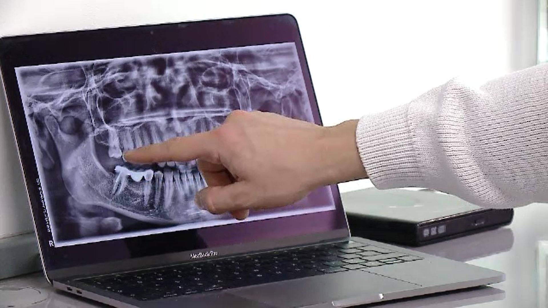 CSID. Procedura prin care medicul stomatolog poate înlocui un dinte în câteva ore