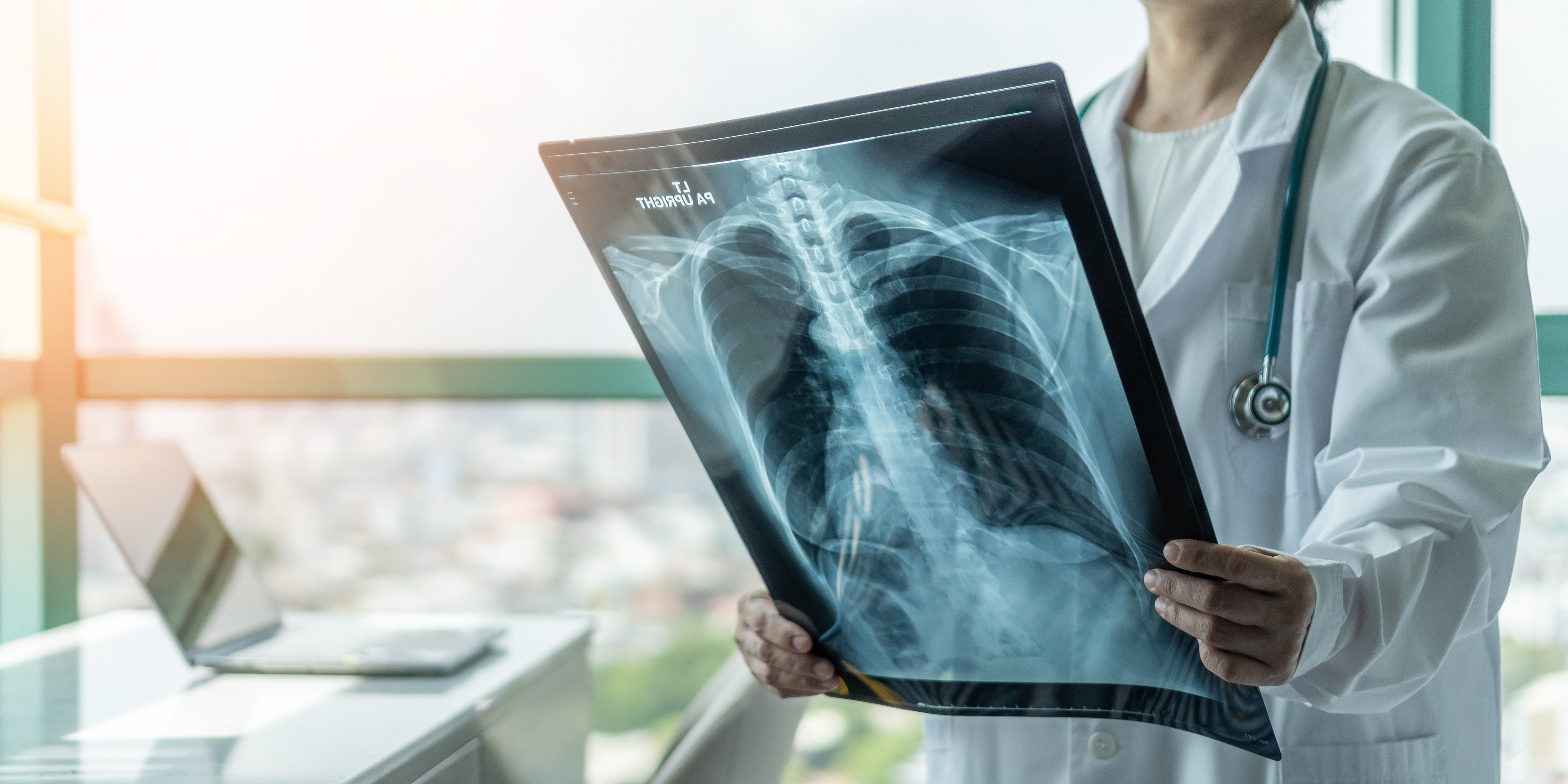 Plămânul, organul cheie în infecția cu SARS COV-2. Traseul virusului la nivel pulmonar, explicat de medicul pneumolog