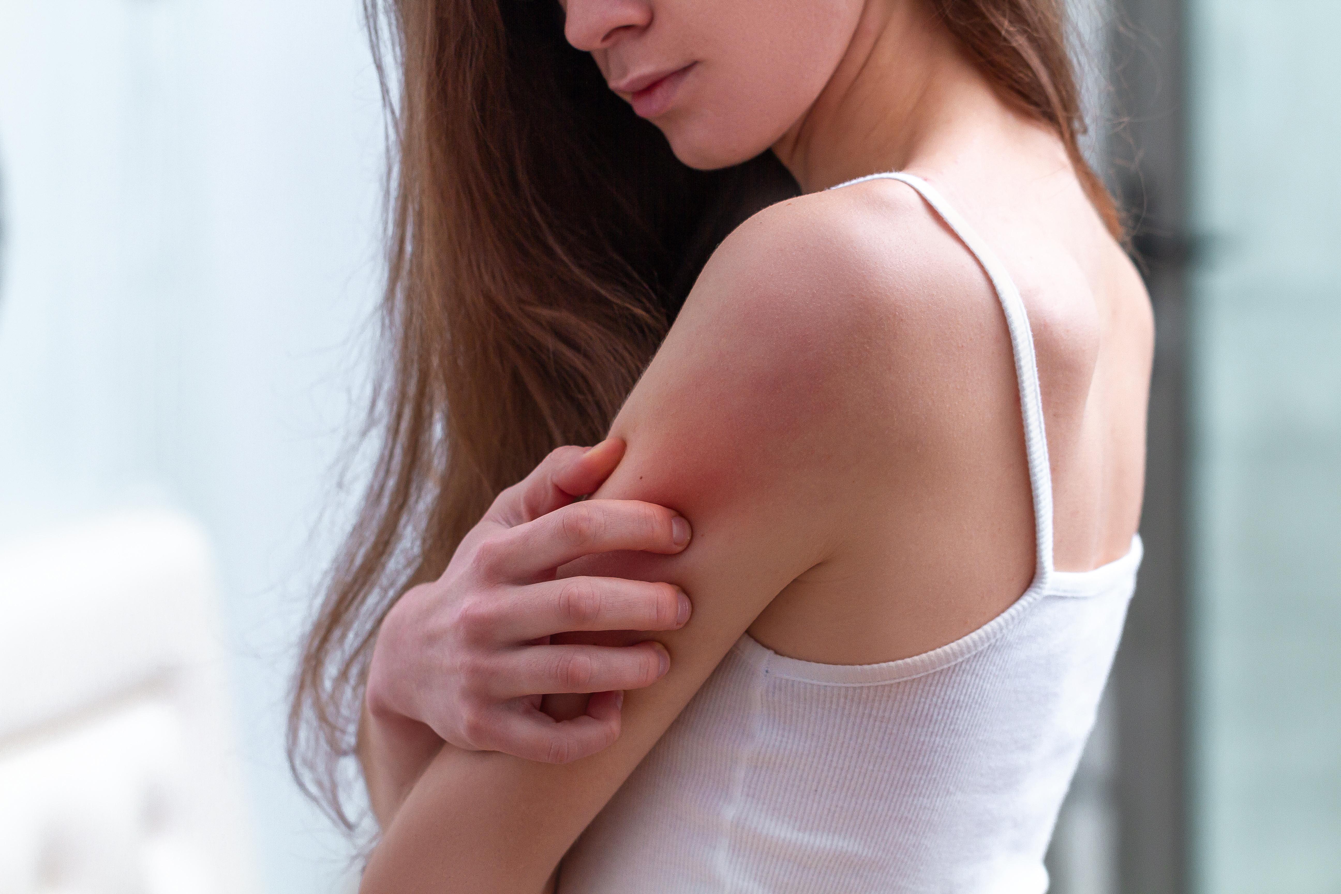 Ce manifestări cutanate pot apărea în boala COVID 19 și care este durata lor