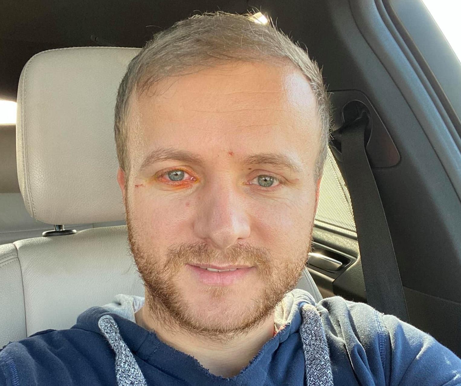 Cine este activistul Daniel Bodnar, rănit grav într-un accident rutier