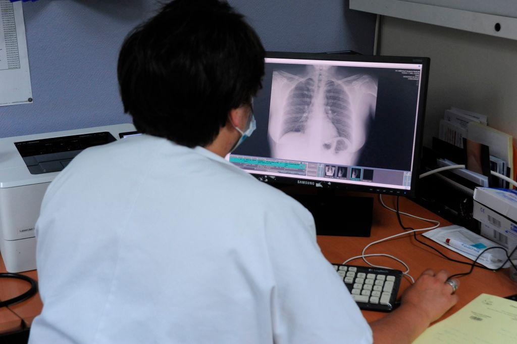 Risc ridicat de sechele pulmonare în cazul copiilor infectați cu SARS-COV-2. Avertismentul medicilor