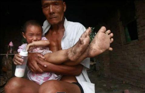 O fetita de 3 ani, din China, e nevoita sa mearga desculta, din cauza unei malformatii. VIDEO