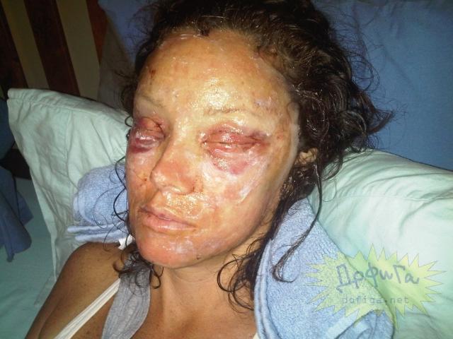 Interventiile ilegale facute in scop de infrumusetare reusesc sa omoare femei de pe intreg mapamodul