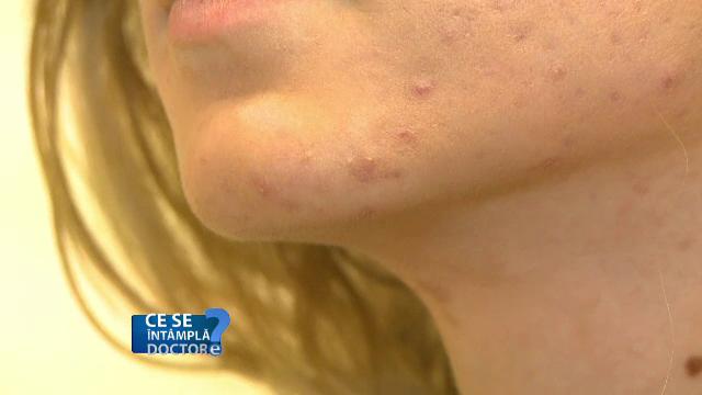 Inflamaţie, noduli, puroi, toate determinate de o banală acnee. Cum o tratăm