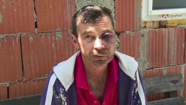Un bărbat a fost desfigurat în bătaie de doi băieţi, de 13 şi 17 ani. Mărturia victimei