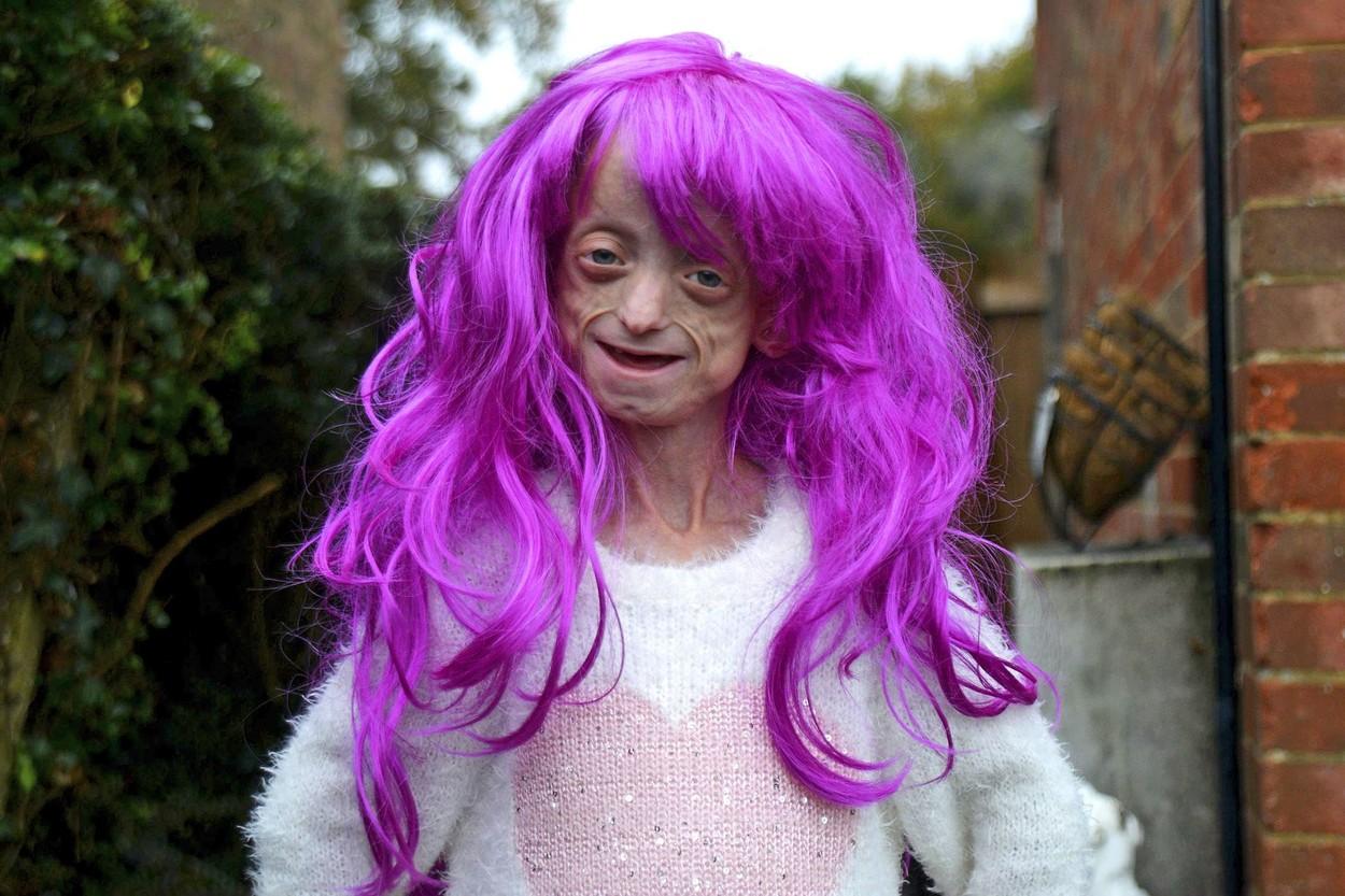 """O fată cu boala """"Benjamin Button"""" a murit la 18 ani, după ce corpul ei a ajuns la 144 ani"""