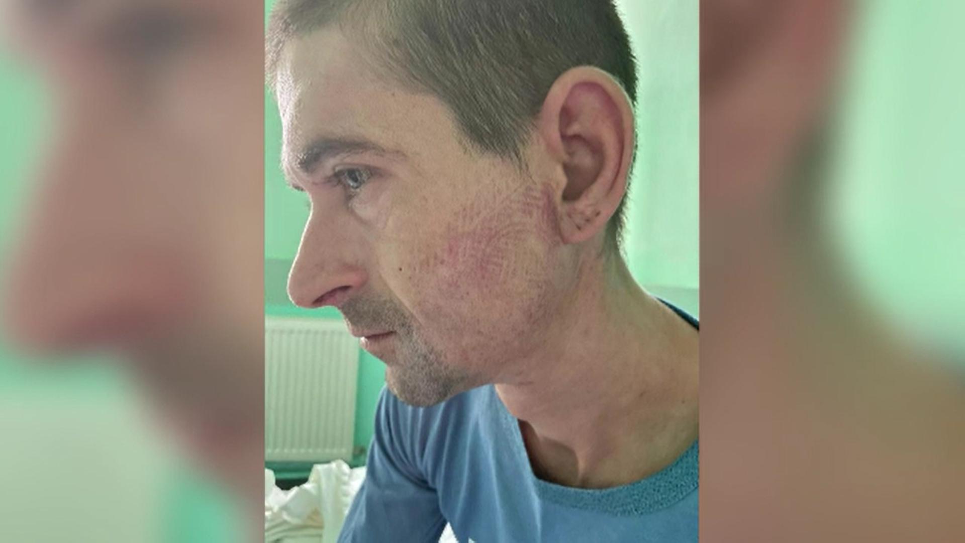 Un bărbat din Gorj a ajuns la spital cu amprenta unui bocanc pe față. Susține că a fost bătut de jandarmi