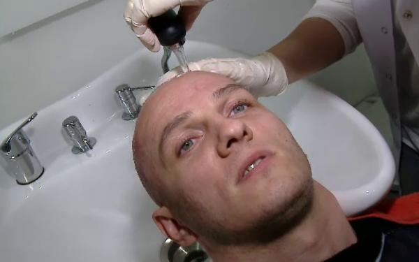 Vestea pe care a primit-o Mihai Traistariu de la medicul ce i-a facut implantul de par