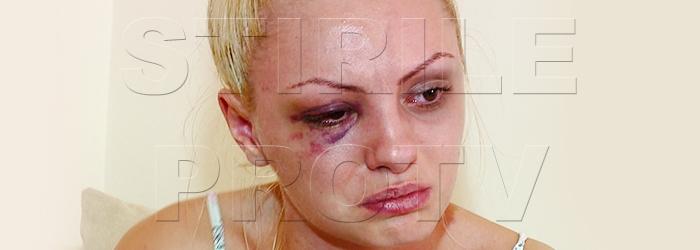Alexandra Stan, despre cel care a desfigurat-o: