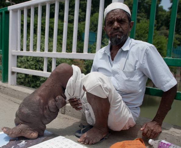 Un cersetor din India sufera de boala
