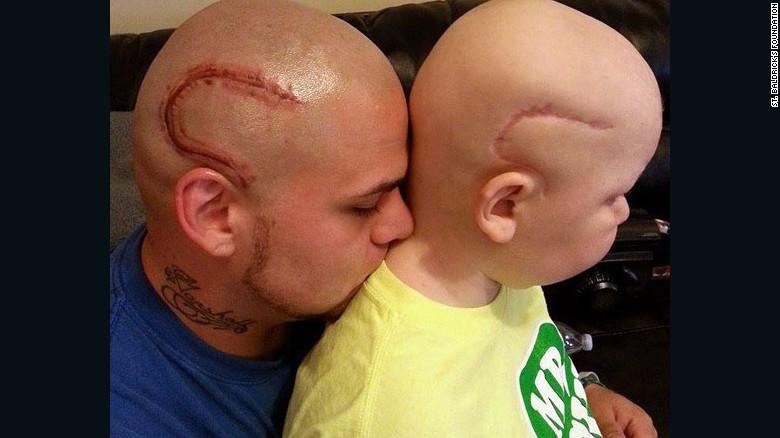 Gestul facut de acest tata pentru fiul sau, bolnav de cancer. Adevarul dureros din spatele acestei imagini