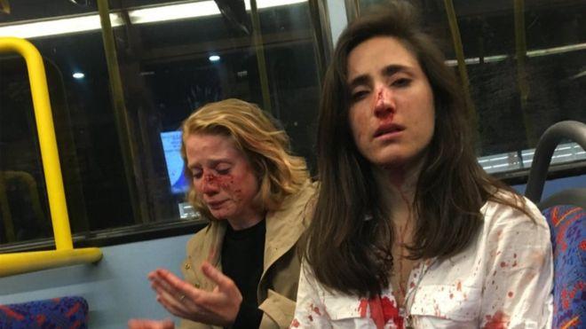 Reactia femeilor batute brutal pentru ca nu s-au sarutat intr-un autobuz. Atacatorii, prinsi