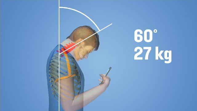 Cazurile de hernie de disc s-au înmulțit în ultimii 20 de ani, din cauza poziției incorecte la calculator
