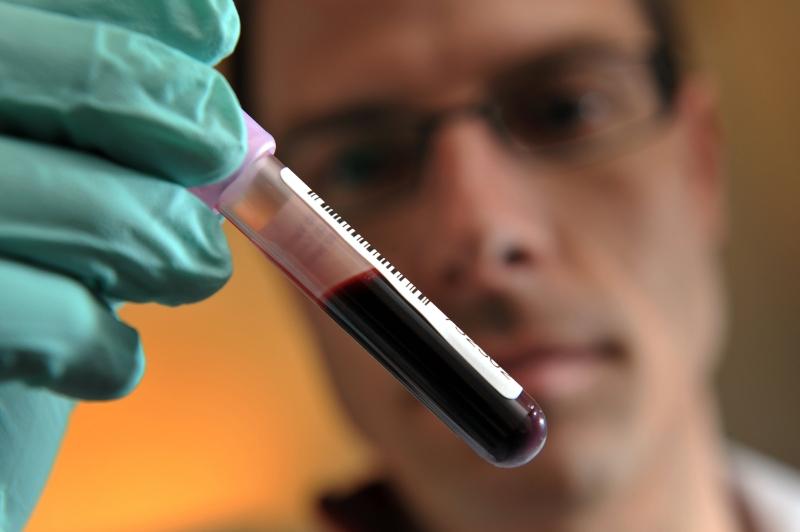 Guvernul a dat inca 6,2 mil lei pentru Registrul Donatorilor de Celule Stem