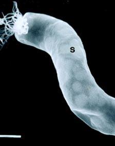 Cercetatorii au modificat genetic o bacterie, care va vana celulele canceroase