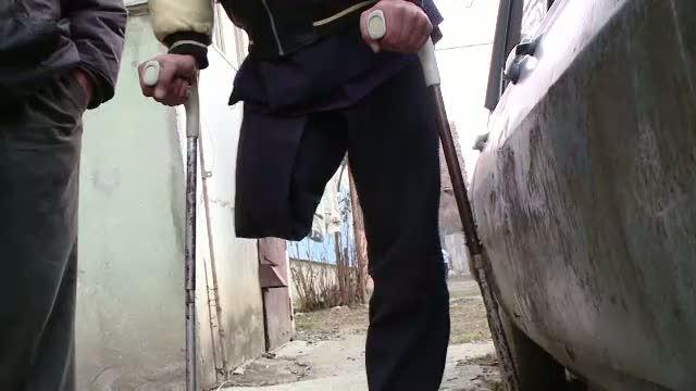 Un om al strazii din Brasov a fost trimis ACASA cu un picior amputat la doar 6 zile de la operatie