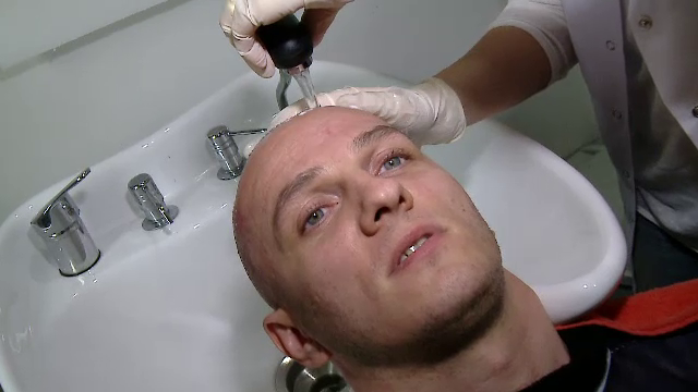 Mihai Traistariu, prima aparitie publica dupa operatia de transplant de par. Cum arata acum. FOTO