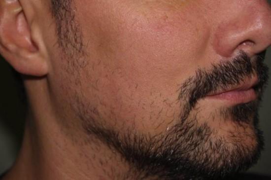 Noua moda printre tineri. Barbatii apeleaza la implanturi de par facial pentru a avea aspectul dorit