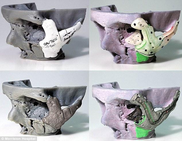 Operatie in premiera. Craniu imprimat 3D, realizat pentru victima unui acident de motocicleta