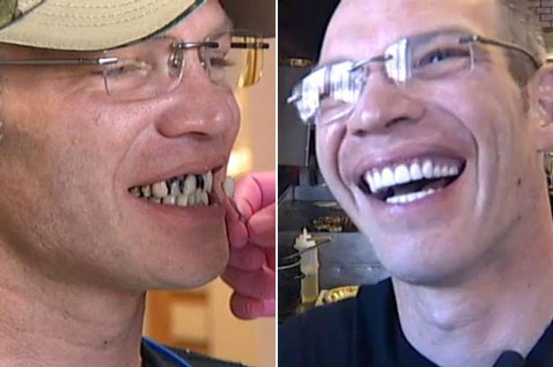 Donatie surpriza pentru un ospatar prietenos. Un client i-a daruit 25.000 de dolari pentru a-si repara dintii cariati
