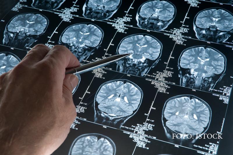Cercetătorii ar putea detecta cazurile de Alzheimer cu 15 ani înainte de apariția simptomelor