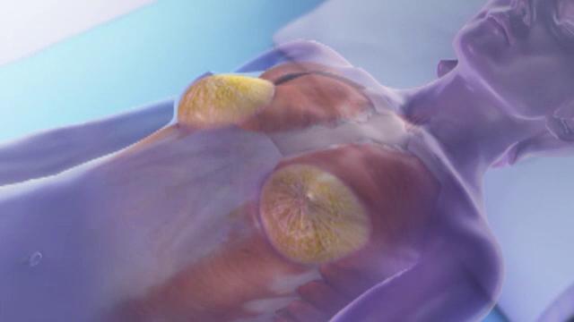 Sute de cazuri de cancer diagnosticat la femei care au implanturi mamare. Semnalul de alarma tras de autoritatile din SUA