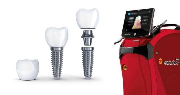(P) Implanturi dentare asistate laser în clinica Life Dental Spa